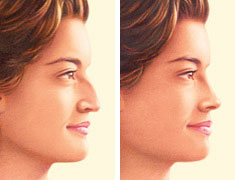 rhinoplasty-procedure-before-after